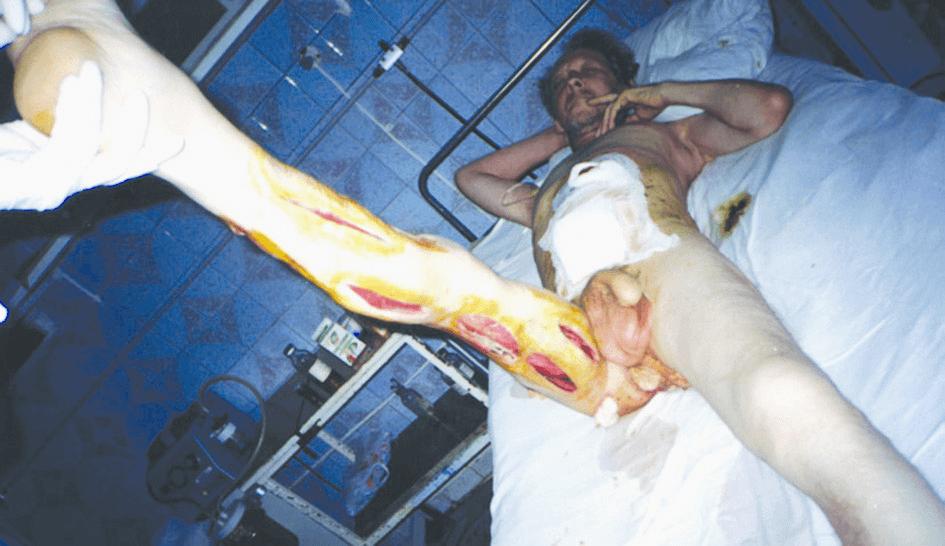 Рис. 9. Анаэробный парапроктит: распространение на брюшную стенку и нижнюю конечность (пациент с колостомой)