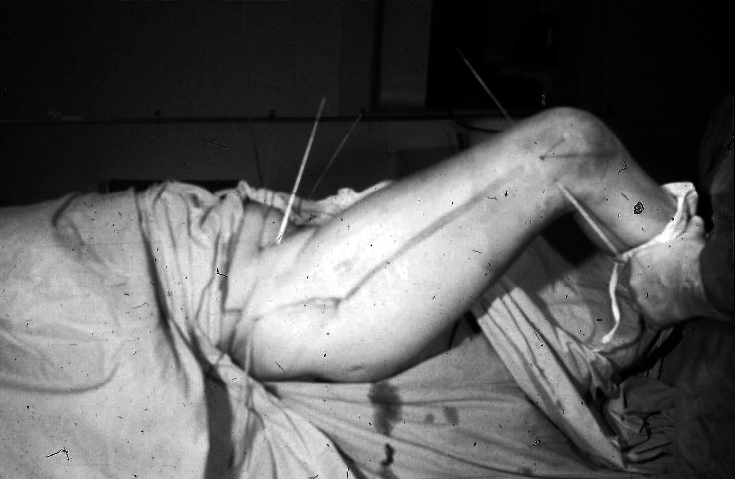 Контрактура тазобедренных суставов топинамбур лечение при болях в суставах