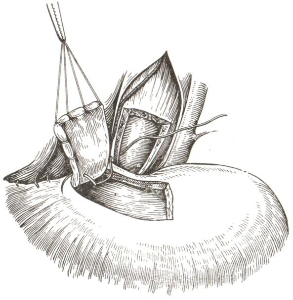 Кардиомиотомия